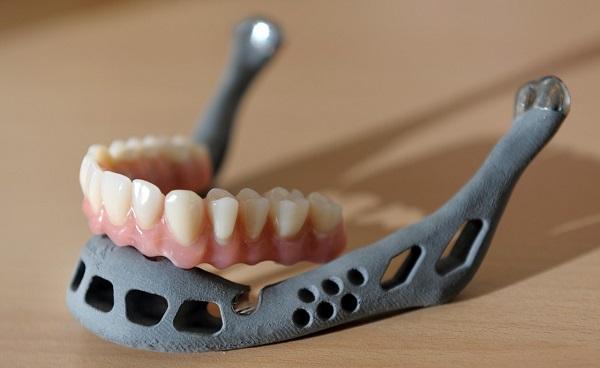 3D printed jaw. Source: Slate