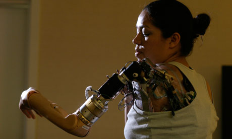 Claudia Mitchell bionic arm